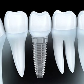 implant between two teeth