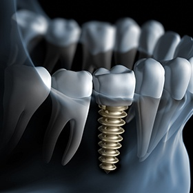 illustration of screwed in implant