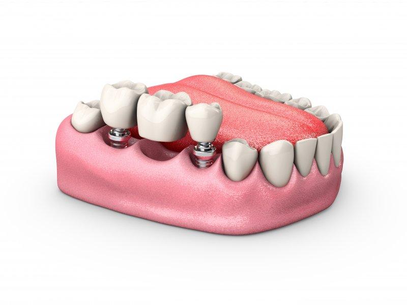 Dental Implant Bridge